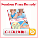 Living With Keratosis Pilaris